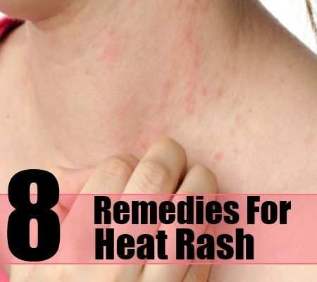 8 Best Herbal Remedies For Heat Rash