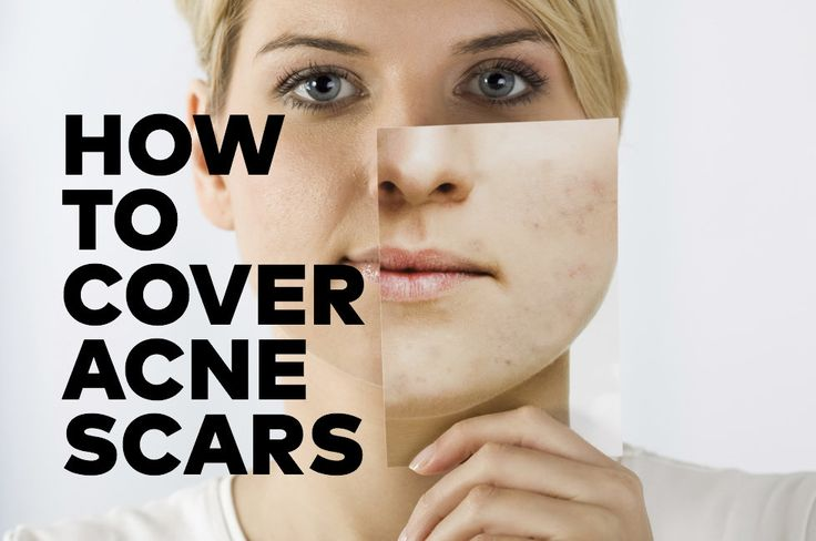 41 best images about Beauty on Pinterest Acne scars ...