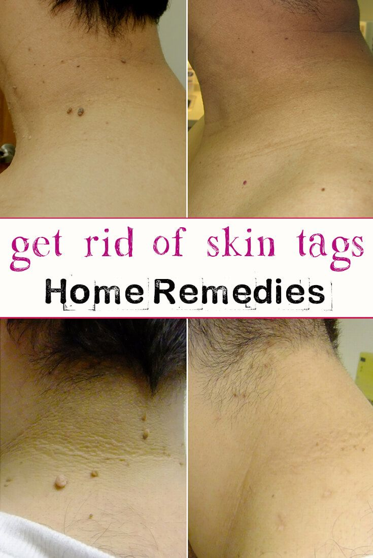 Skin tags are often wrongly considered moles because they have the same color as the skin or darker.These kind of skin tags are developed on the neck, chest or armpits and are caused by papilloma virus. Skin tags have a little foot of which is often twisted or broken by small trauma. Skin tags grow …