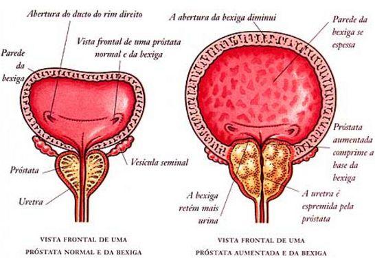 Aché lança Dastene (dutasterida) para tratamento de HPB (Hiperplasia Prostática Benigna)