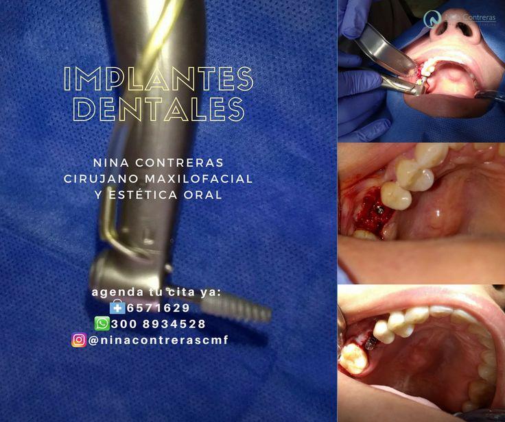 Especialistas en #implantesdentales Agenda tu #cita ya: ☎️ 6571629 📲 300 8934528 #cirugía #ortognática #maxilofacial #ortodoncia #diseñodesonrisa #dentalimplants #orthognathicsurgery #surgery #maxillofacialsurgery #orthodontics #smiledesign #smile #teethwhitening #teeth #oralrehabilitation #oral #ninacontreras http://ninacontrerascmf.com/