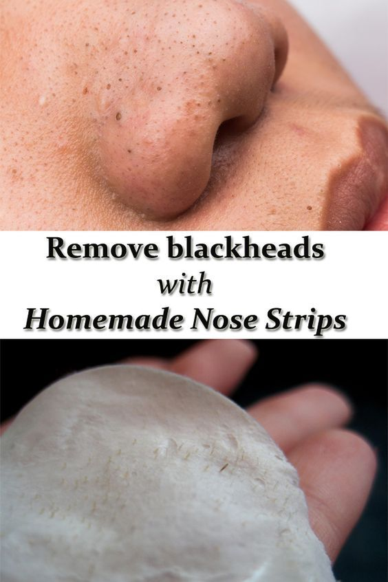 Remove blackheads with homemade nose strips