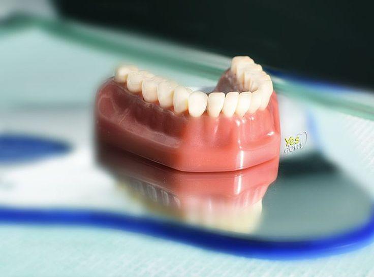 Protetyka Wrocław Yes Dent  #dentist  #dentystawrocław  #stomatolog  #wrocław  #yesdent  #dentistry #stomatology #stomatologwrocław  #dentalclinic #protetykawroclaw #ortho