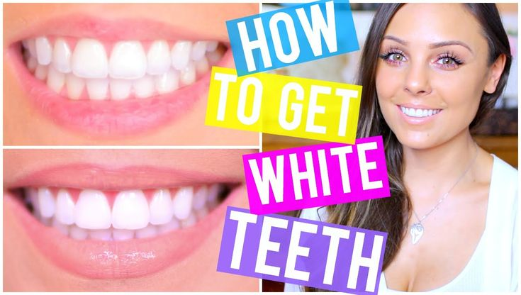 How to Get  White Teeth: Why You Shouldn't Do DIYs + Tips and Tricks   K...