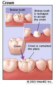 Dental Crowns in Poland