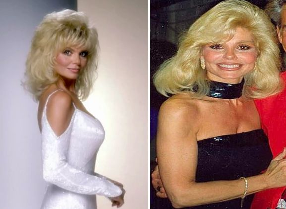 Popular Women From 1970s: Then & Now   Greeningz   LONI ANDERSON
