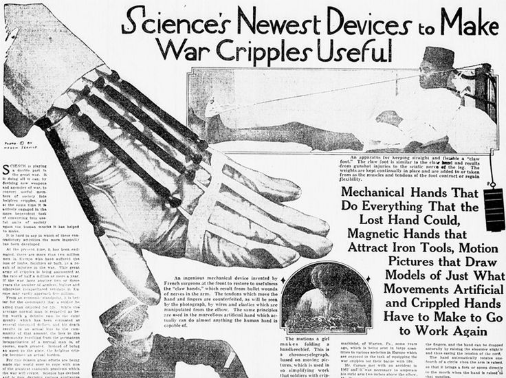 """World War I Live on Twitter: """"Mar 5th 1916: Mechanical and magnetic hands: """"Science's newest devices to make war cripples useful"""". https://t.co/ehDZuWmDYf"""""""