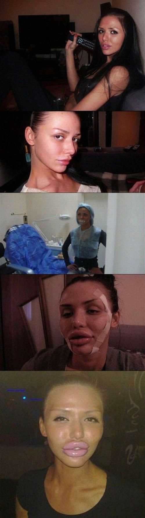 Plastic surgery fail 24 did your plastic surgeon fall asleep on the job