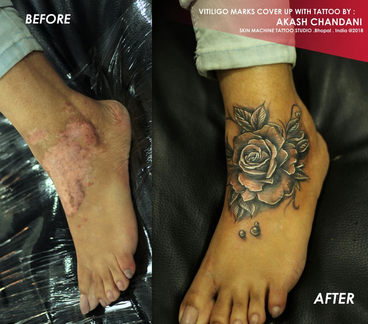 Finally covered this vitiligo marks into a beautiful rose