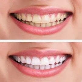 #Teethwhiteningsolution