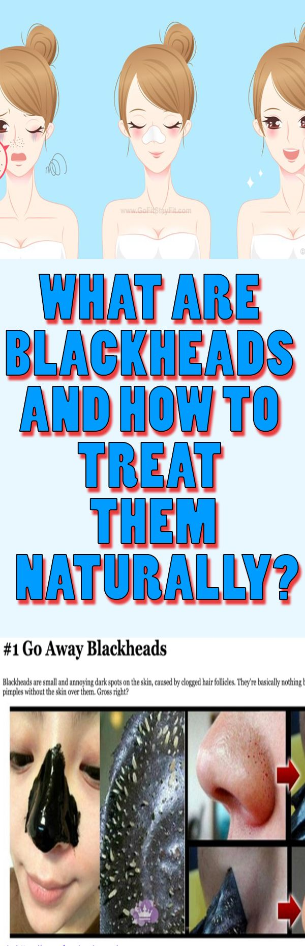 What are Blackheads and How to Treat Them Naturally?