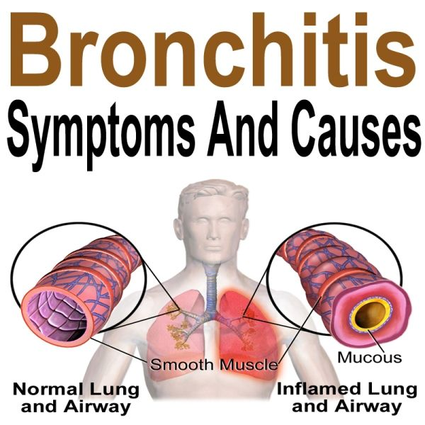 297 best images about respiratory on Pinterest ...