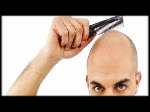 Erblich Bedingter Haarausfall - Haarausfall Heilung, Haarausfall Mann Was Tun http://Haarausfall-Heilung.info-pro.co Ist eigentlich vollkommen normal -- so lange nur rund 100 Haare pro Tag in der Bürste oder dem Kamm hängen bleiben. Erst wenn mehr Haare ausgehen, spricht man von krankhaftem Haarausfall. Ein spärlicher Haarwuchs ist nicht selten -- insgesamt trifft er aber mehr Männer als Frauen.  Schätzungsweise 1,5 Millionen Männer