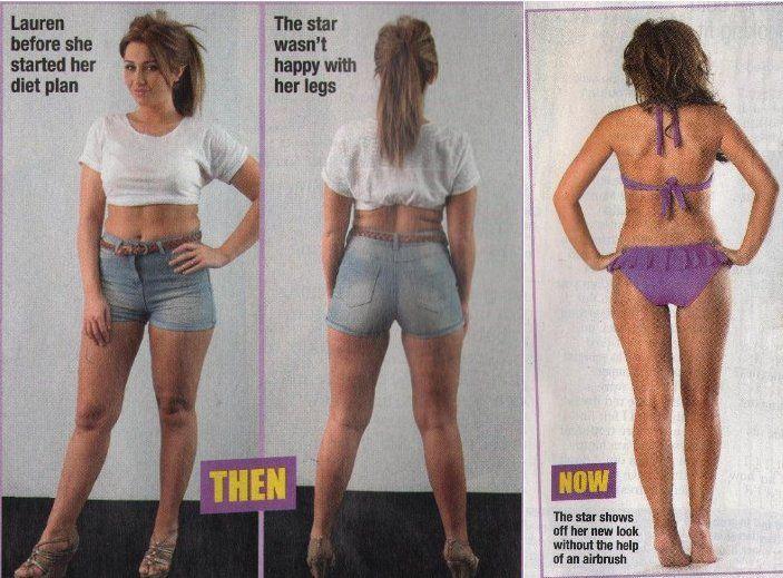 sirt1 gene weight loss