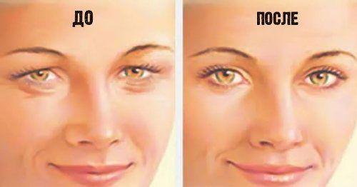 Как и зачем нужно делать упражнения для глаз. Как сделать полезной домашнюю, не хирургическую блефаропластику. Как подтянуть нависшие веки.
