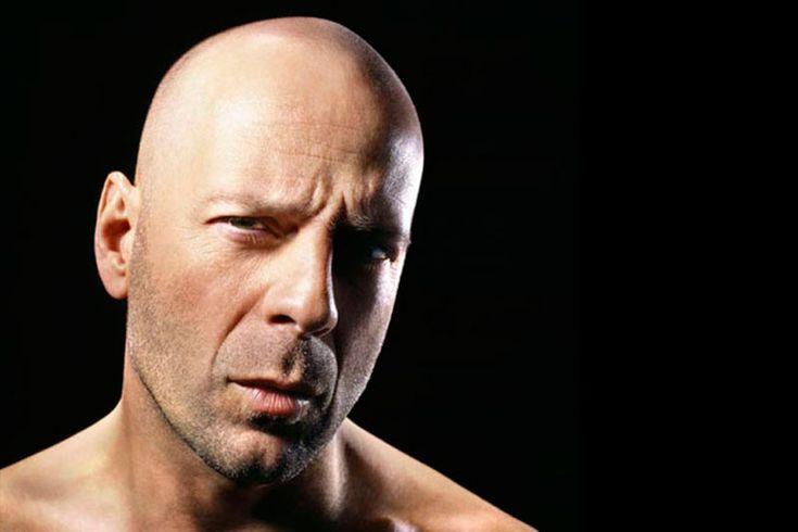 Меньше всего я хочу лечиться от облысения https://mensby.com/sport/health/3623-want-cure-baldness  Сейчас мужчинам пытаются навязать лечение облесения. Но разве все лысые мужчины хотят вернуться в пору кучерявого изобилия?