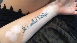 Obat Vitiligo KIRIM BARANG DULU Telp (0265) 7524851 - 081380009394 - Cara mengobati vitiligo secara alami dengan obat vitiligo terbaik ketahui penyebab vitiligo dan bagaimana penyembuhan penyakit vitiligo yang baik dan benar.  http://caramengobatitradisional.web.id/obat-vitiligo-hp-0813-8000-9394/