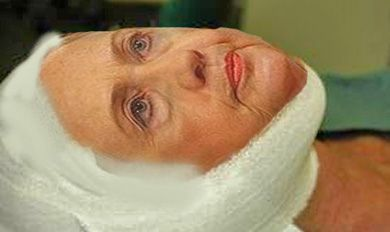In preparation for her 2016 run, Hillary Rodham Clinton has gotten a new facelift so as not to look her age - which will be 70 years old by the time the election rolls around. Description from sodahead.com. I searched for this on bing.com/images