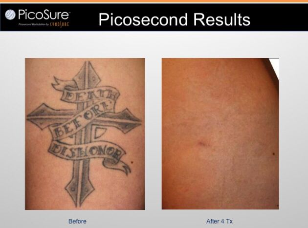 These are the results after only 4 treatments of the PicoSure laser.