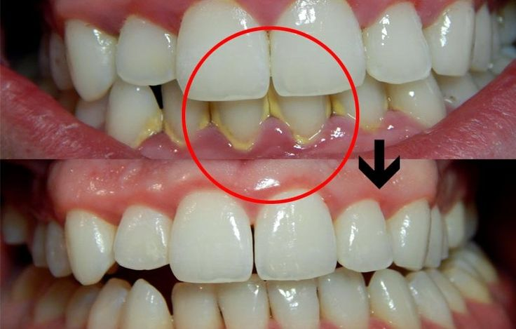 how to get plaque off teeth naturally