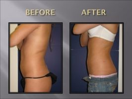 Smart Lipo Before and After Photos: Belly