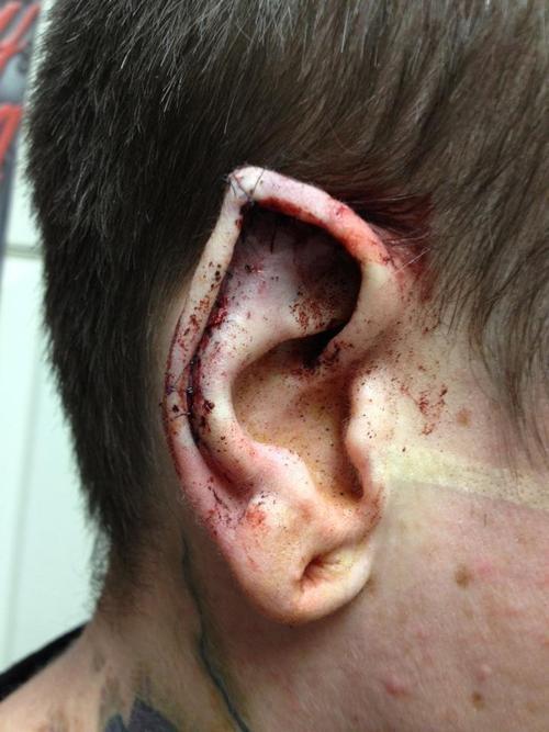 Pin tillagd av James Johansson på Body mods   Pinterest Ear Pointing Healed