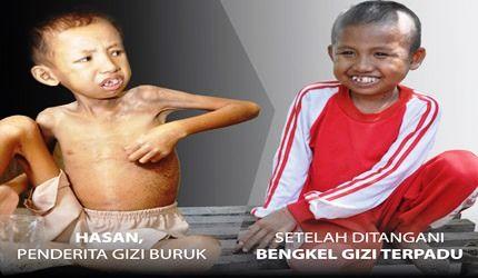 Bengkel Gizi Terpadu, Berantas Malnutrisi Anak
