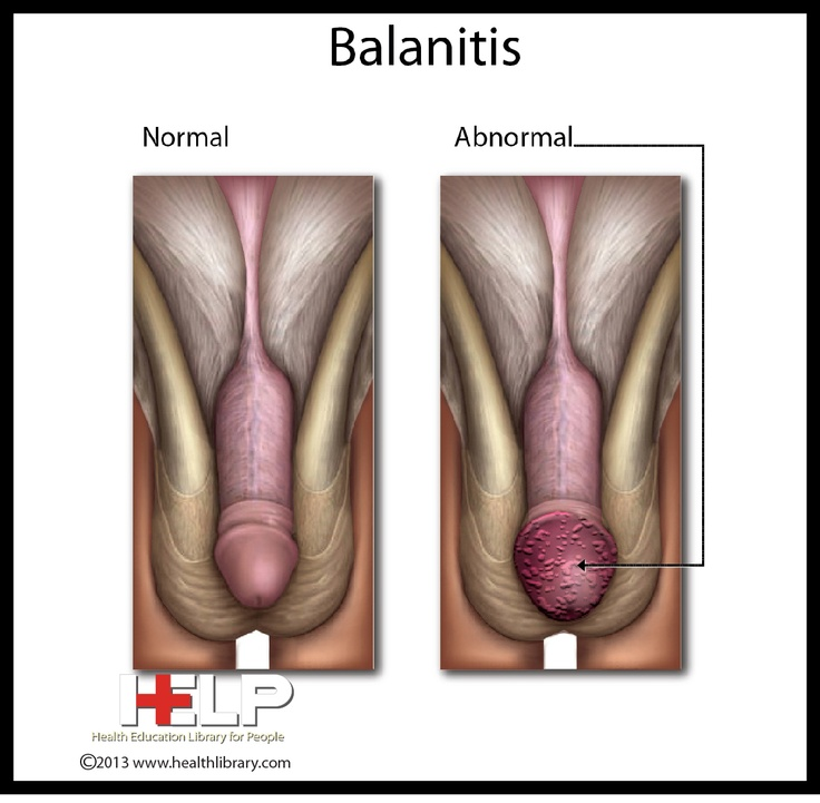 Balanitis | Male Reproductive System | Pinterest