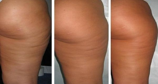 Homemade Ointment That Will Remove Your Cellulite After Only 7 Days !!