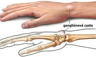 ganglionove-cysty