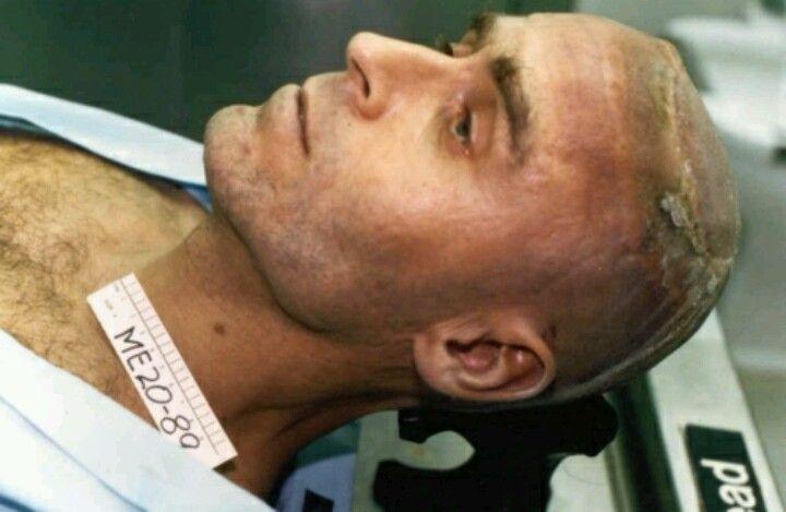 ted bundy autopsy photo