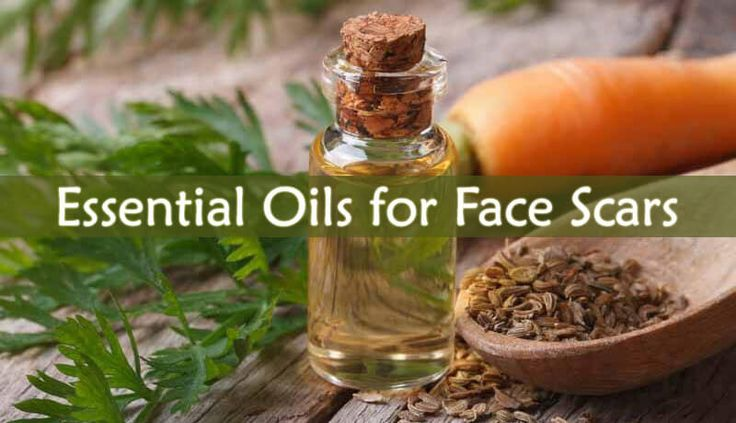 There are laser treatments or filler injections that are very expensive and not as efficient as these oils. Here are the best Essential Oils for Face Scars: