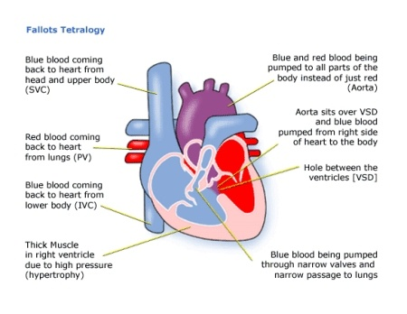 Facts about Tetralogy of Fallot