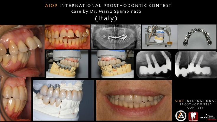 Case report by Mario Spampinato, Italy. Case presentation. 62 years old patient, female. Upper jaw: serious periodontal diseases, teeth migrations, mobility. Lower jaw: periodontal diseases, teeth migrations, lack of molars.  Treatment plane: extractions and implant supported rehabilitation in the upper jay; periodontal treatment, natural teeth supported bridges in the lower.  more on:  https://www.facebook.com/media/set/?set=a.10152814543373970.1073741924.134992723969&type=1