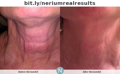 Better (and cheaper) than injections and surgeries?  http://vibrantme.arealbreakthrough.com/