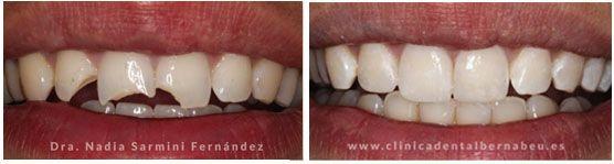 Con las carillas de Composite dental lucirás una sonrisa deslumbrante en tan solo una visita. Clínica Especializada en carillas dentales y estética dental.