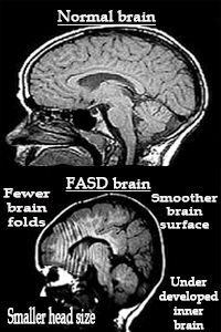 » Less ADHD Than Meets The Eye Among Kids With Fetal Alcohol Syndrome - Psych Central News