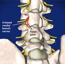 Ενδείξεις για ενδοσκοπική νευροτομή:  Χρόνιοι πόνοι στην πλάτη και στη μέση που δεν ανταποκρίνονται στη συντηρητική θεραπεία.
