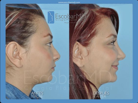 Partial Revision in Rhinoplasty (15) – Best Rhinop…