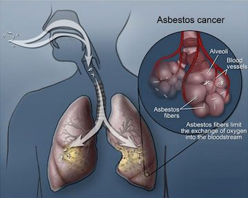 Asbestos And Lung Cancer – Things You Must Understand