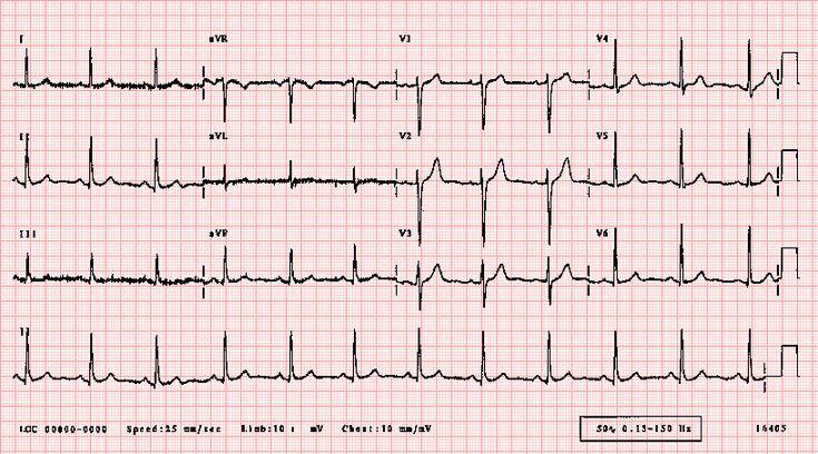 Normal adult 12-lead ECG