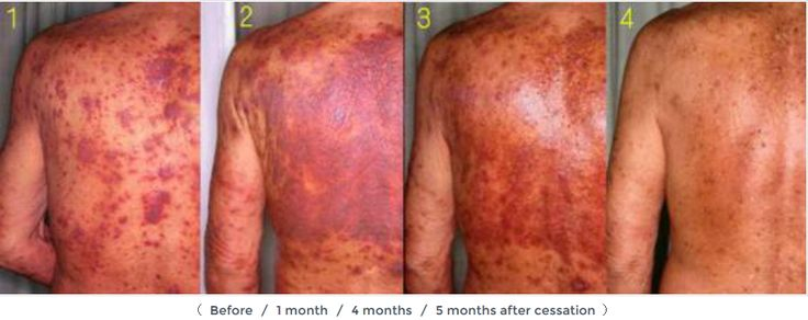 http://saynototopicalsteroids.com/topical-steroid-withdrawal-and-addiction/  The ultimate resource page for topical steroid withdrawal and addiction (red skin syndrome) - symptoms, duration, blogs, Dr Rapaport, Dr Kligman, Dr Fukaya
