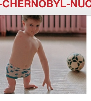 Chernobyl Radiation effects on humans. NOT ACCEPTABLE, EVER!