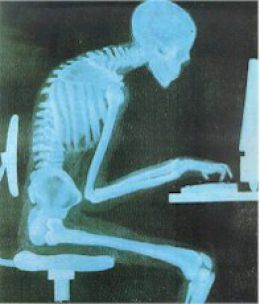 If you work too long in front of the computer whole day long, soon you will be developing a tunnel vision because your eyes focus very long on the monitor and will start having problems with your pheripheral vision. But it has some solution such as take breaks, get up and look something else for a while.