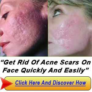 how to get rid of deep cut scars