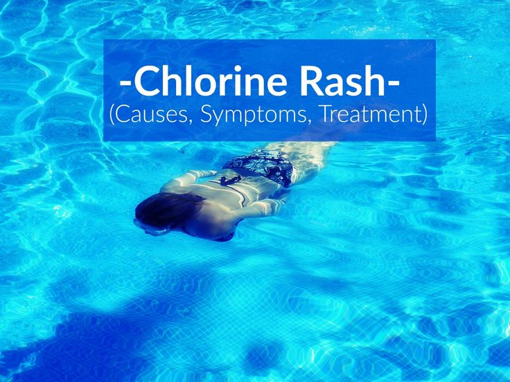 Also known as swimmers itch, swimming pool rash or chlorine rash there are multiple types