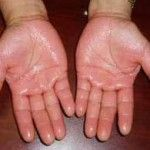 Home Remedies For Sweaty Palms – Easy And Simple Natural Cures