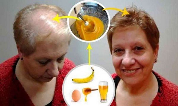 Health Wise Owl: Recipe To Grow Your Hair; Leave All Doctors With Open Mouth