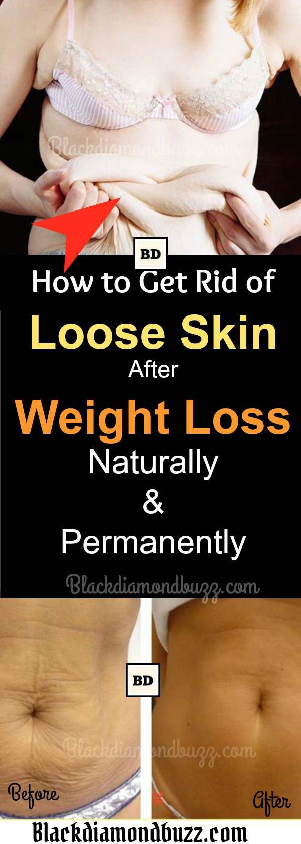 Get Rid Of Loose Belly Skin Naturally