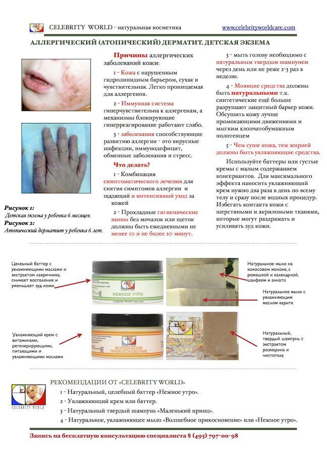Что делать если у ребенка атопический дерматит